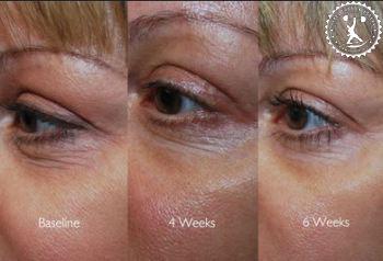 отзывы о хорошем креме от морщин вокруг глаз