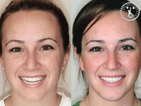 отзывы на отбеливание зубов