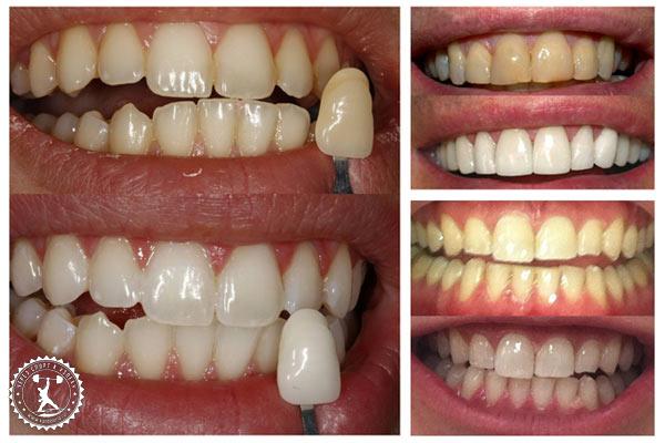 отзывы на лазерное отбеливание зубов