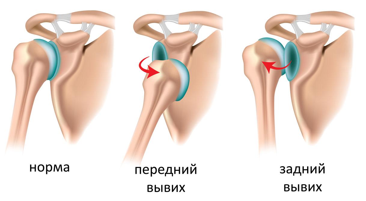 Изображение - Период восстановления плечевого сустава uprazhneniya-dlya-vosstanovleniya-plecha-posle-travmy-02