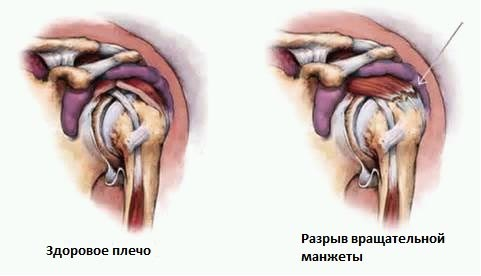 Изображение - Гимнастика после травмы плечевого сустава uprazhneniya-dlya-vosstanovleniya-plecha-posle-travmy-04