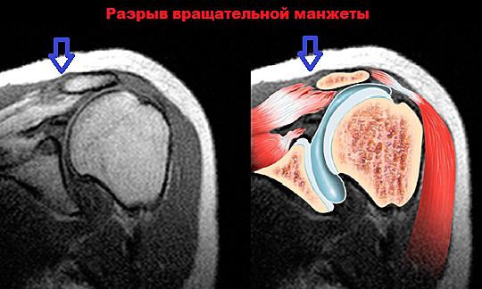 Изображение - Гимнастика после травмы плечевого сустава uprazhneniya-dlya-vosstanovleniya-plecha-posle-travmy-05
