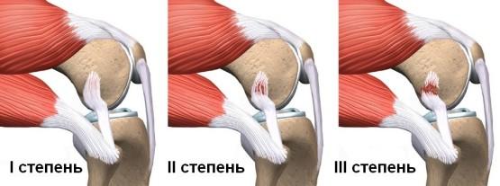 Изображение - Гимнастика после травмы плечевого сустава uprazhneniya-dlya-vosstanovleniya-plecha-posle-travmy-06