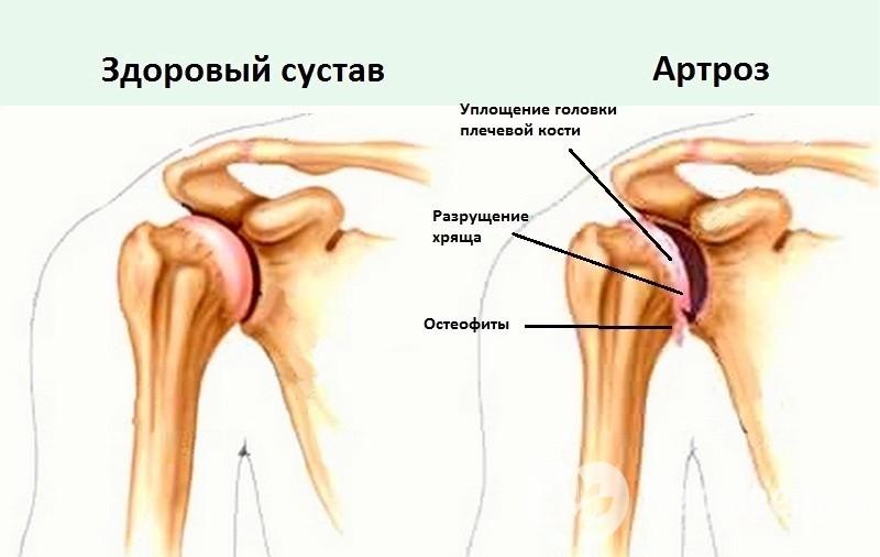 Изображение - Гимнастика после травмы плечевого сустава uprazhneniya-dlya-vosstanovleniya-plecha-posle-travmy-07