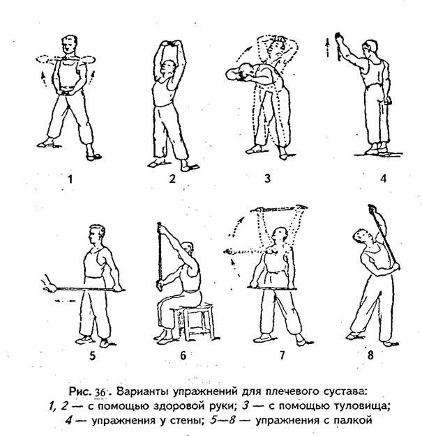 Лфк привывихе плечевого сустава бальзамы валентина дикуля для суставов