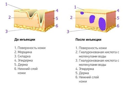 Как работает гиалуроновая кислота при инъекции?