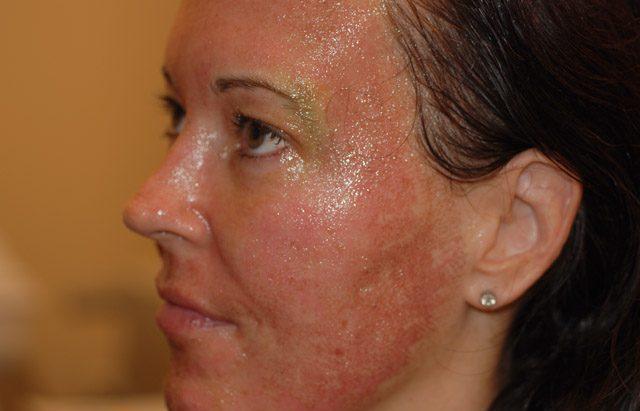 Возможные осложнения и аллергические реакции
