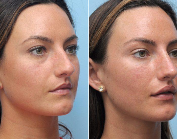 Фото до и после филлеров для губ
