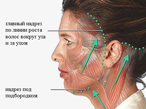 Проведение процедуры хирургическим путем