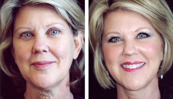 Фото до и после подтяжки нитями