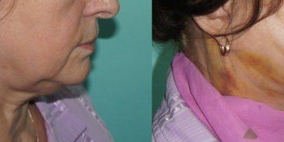 Фото до и после нитей Аптос