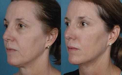 фото до и после мезонитей