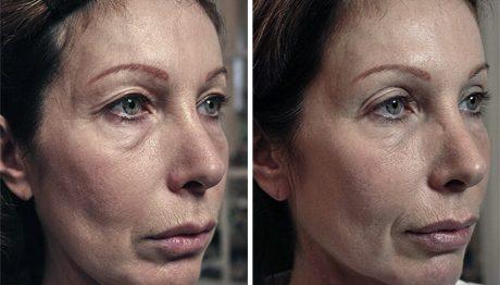 Фото до и после УЗ SMAS-лифтинга