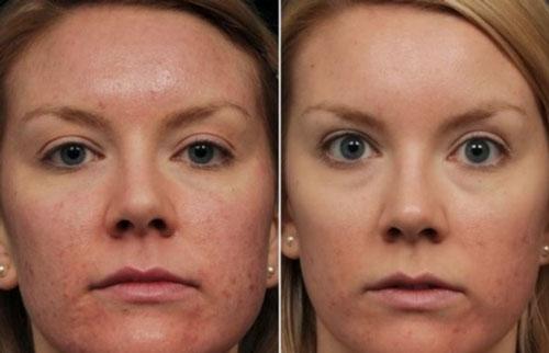 Отзывы про эффект биоревитализации лица с фото до и после