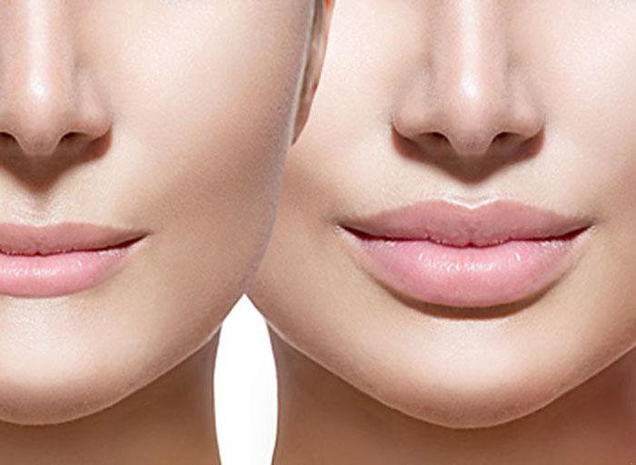 Какие пропорции губ можно назвать идеальными