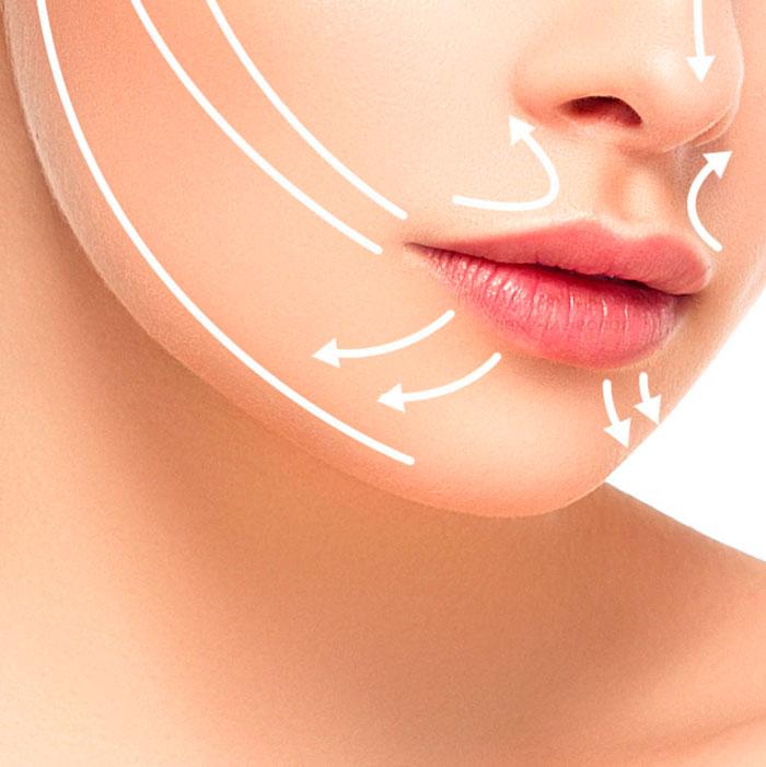 Достоинства и недостатки метода увеличения губ гиалуроновой кислотой