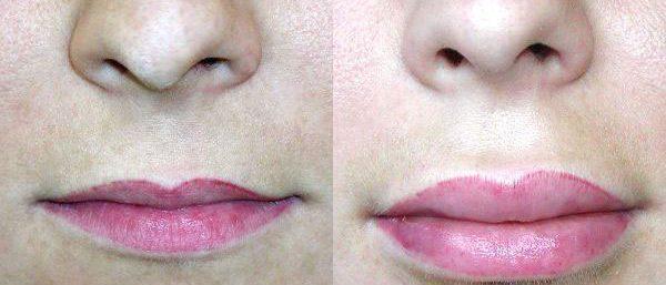 Фото до и после увеличения губ гиалуроновой кислотой 1 мл